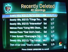 TiVo undelete